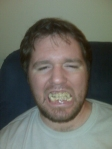 The face of a star in pain... or modeling his new Sasquatch grillz. Either way, ew...